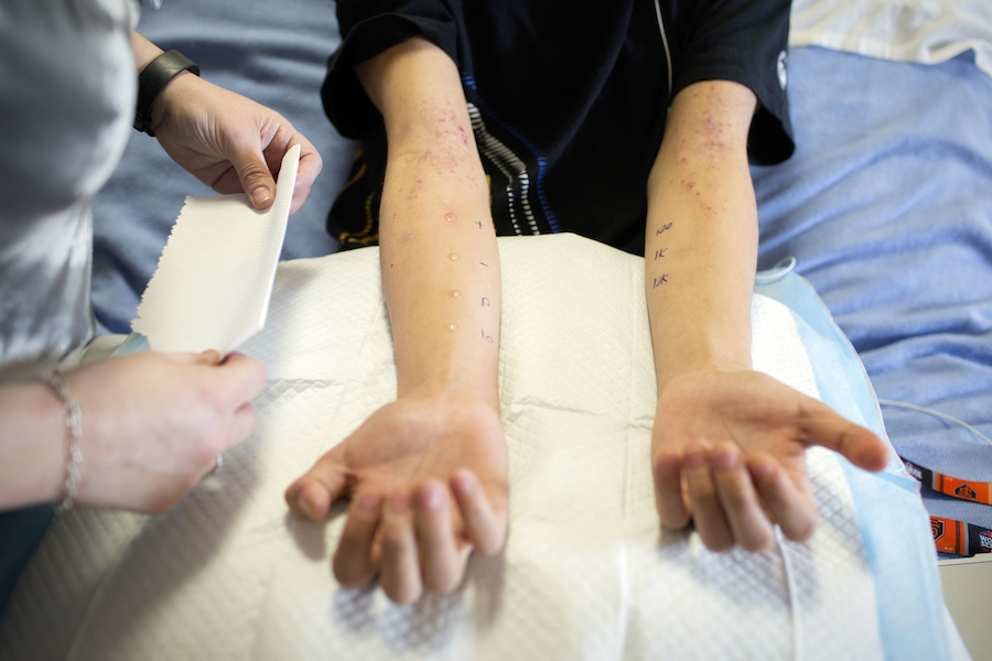 Steven Hom endures a skin test as part of a clinical trial that is designed to desensitize his immune system to his severe peanut allergy with an immunotherapy patch at El Camino Hospital in Mountain View, Calif. Photo by Alison Yin. Photos by Alison Yin